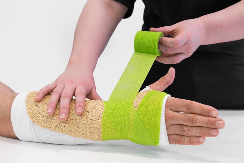démonstration plâtre Woodcast sur un bras humain
